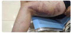 15岁男生遭老师殴打后颅内血肿,家长6天后才知情!
